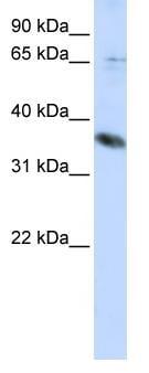Western blot - ST6GALNAC1 antibody (ab82821)