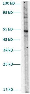 Western blot - TUBGCP2 antibody (ab82824)