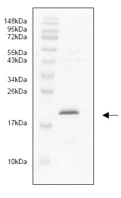 SDS-PAGE - IL33 protein (His tag) (ab82836)