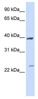 Western blot - ACADL antibody (ab82853)