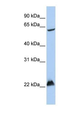 Western blot - RNF156 antibody (ab82869)