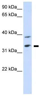 Western blot - SLC25A34 antibody (ab82917)