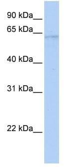 Western blot - DNA Polymerase lambda antibody (ab82919)