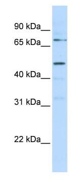 Western blot - KREMEN1 antibody (ab82939)