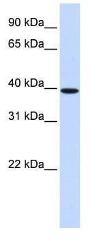 Western blot - Hoxb3 antibody (ab82945)