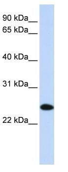 Western blot - HIP2 antibody (ab82950)
