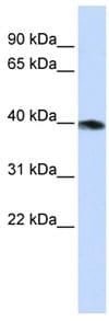 Western blot - G Protein alpha x+z antibody (ab82964)