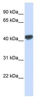 Western blot - ZRANB2 antibody (ab82966)
