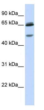 Western blot - GABA A Receptor gamma 2 antibody (ab82970)