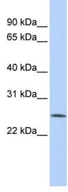 Western blot - FBXO22 antibody (ab82974)