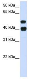 Western blot - USP22 antibody (ab82986)