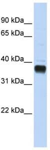 Western blot - NUDT18 antibody (ab82997)