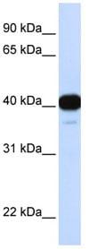 Western blot - FOXL1 antibody (ab83000)