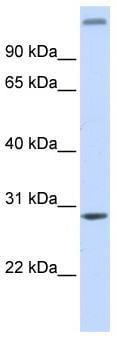 Western blot - ABH2 antibody (ab83005)