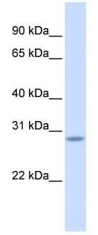 Western blot - Scratch 2 antibody (ab83031)