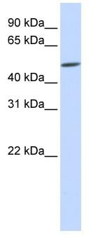 Western blot - EVX2 antibody (ab83054)
