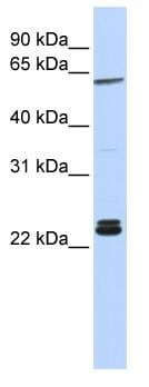 Western blot - Anti-Histone H1.0 antibody (ab83058)