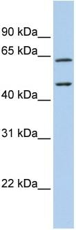 Western blot - CECR1 antibody (ab83080)