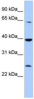 Western blot - CIAO1 antibody (ab83088)