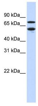 Western blot - TR2-11 antibody (ab83101)