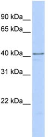 Western blot - HNRPDL antibody (ab83215)