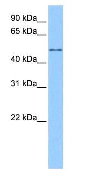 Western blot - CESK1 antibody (ab83235)