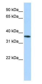 Western blot - OR13C5 antibody (ab83246)
