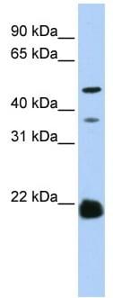 Western blot - ZDHHC14 antibody (ab83260)