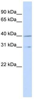 Western blot - Cyclin H antibody (ab83267)