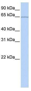 Western blot - KIAA0020 antibody (ab83268)