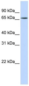 Western blot - hnRNP R antibody (ab83272)