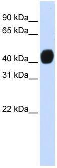 Western blot - HIC5 antibody (ab83273)