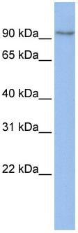 Western blot - TMEM63B antibody (ab83274)