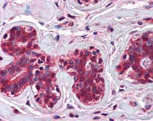 Immunohistochemistry (Formalin/PFA-fixed paraffin-embedded sections)-Anti-CHFR antibody(ab83304)