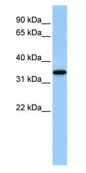 Western blot - ART4 antibody (ab83342)