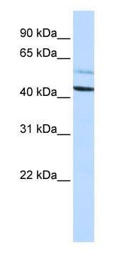 Western blot - Proteasome 19S S5A antibody (ab83344)