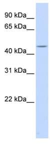 Western blot - HSFY1 antibody (ab83386)
