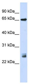 Western blot - GERP antibody (ab83395)