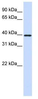 Western blot - EIF3S4 antibody (ab83415)