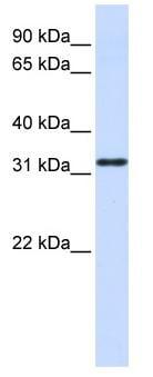 Western blot - Nanos Homologue 1 (NANOS1) antibody (ab83417)