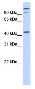 Western blot - AFG3L2 antibody (ab83418)