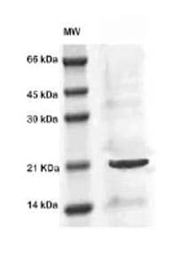 Western blot - MIG7 antibody (ab83494)
