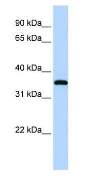 Western blot - VGLL3 antibody (ab83555)