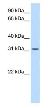 Western blot - BCAS2 antibody (ab83566)