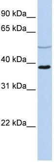 Western blot - A2BP1 / Fox1 antibody (ab83574)
