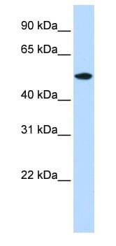 Western blot - RASGEF1A antibody (ab83656)