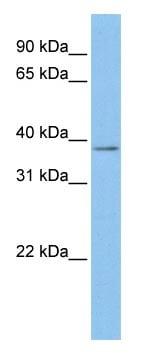 Western blot - Mesothelin antibody (ab83658)