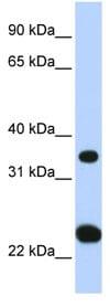 Western blot - SLC25A35 antibody (ab83736)