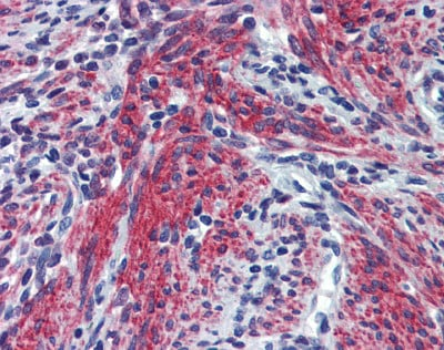Immunohistochemistry (Formalin/PFA-fixed paraffin-embedded sections) - Anti-Periostin  antibody (ab83739)