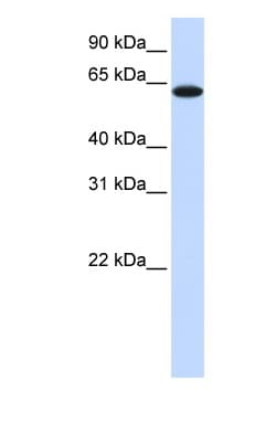 Western blot - TRP1 antibody (ab83774)